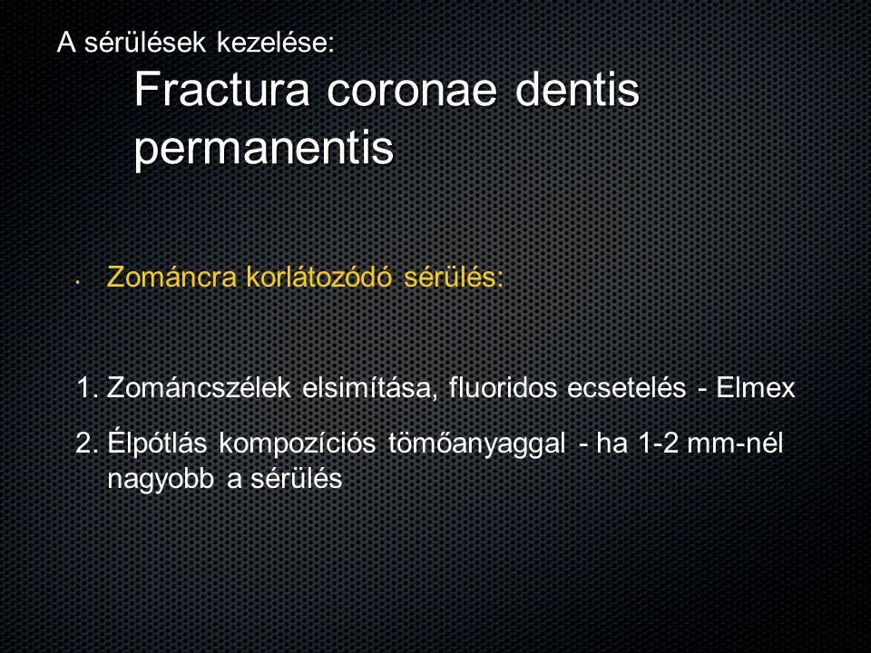 A sérülések kezelése: Fractura coronae dentis permanentis