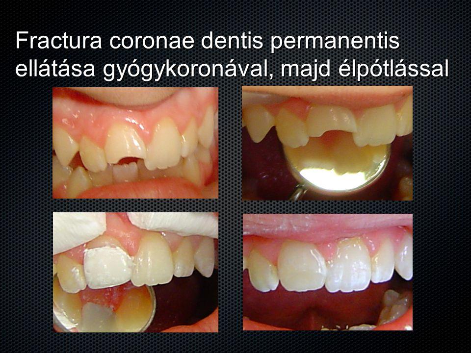 Fractura coronae dentis permanentis ellátása gyógykoronával, majd élpótlással