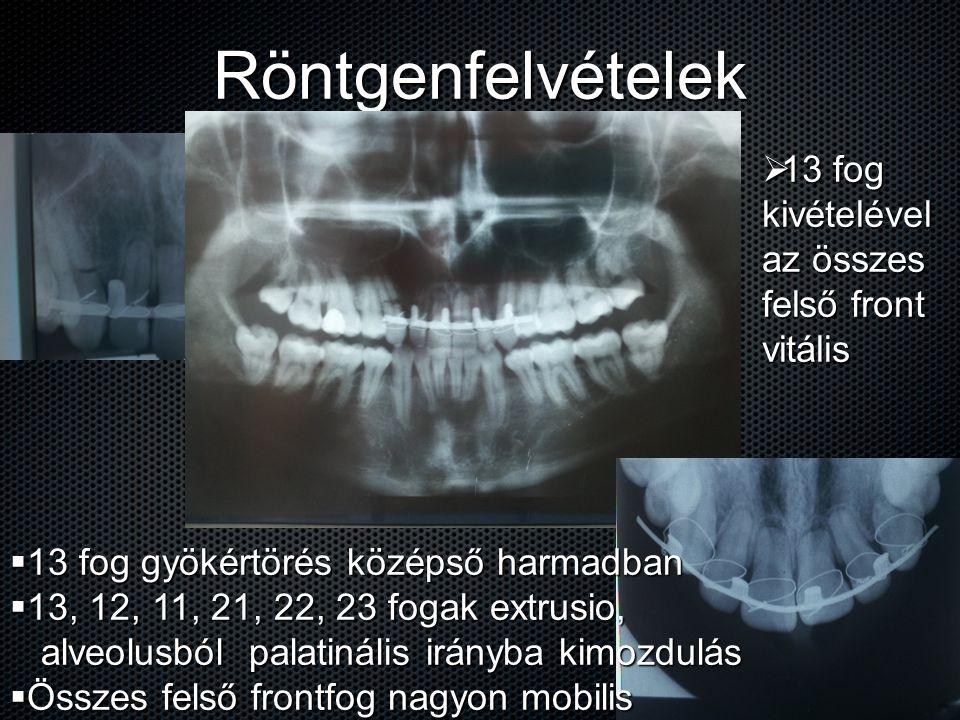 Röntgenfelvételek 13 fog kivételével az összes felső front vitális