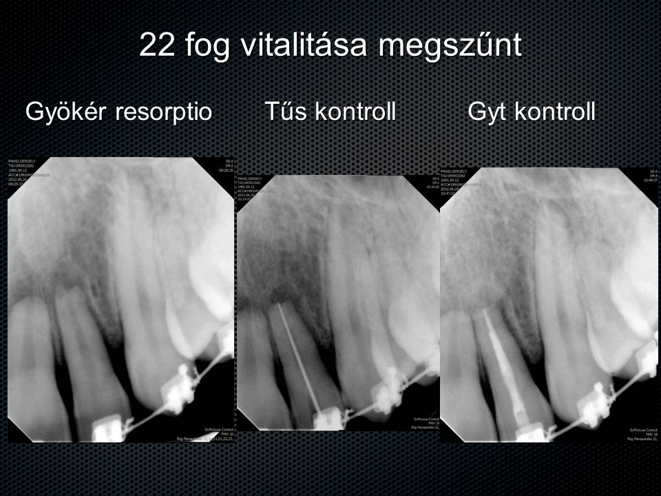 22 fog vitalitása megszűnt