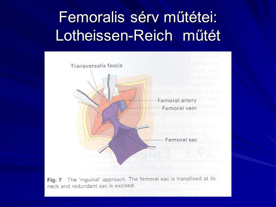 Femoralis sérv műtétei: Lotheissen-Reich műtét
