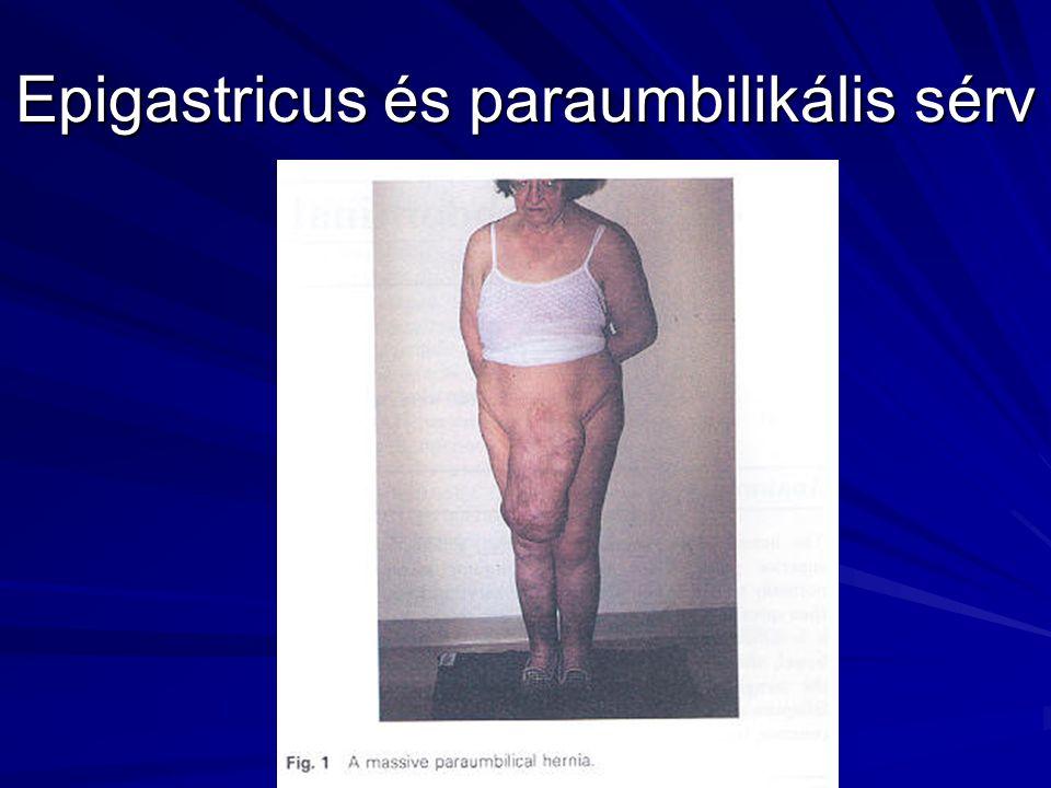 Epigastricus és paraumbilikális sérv