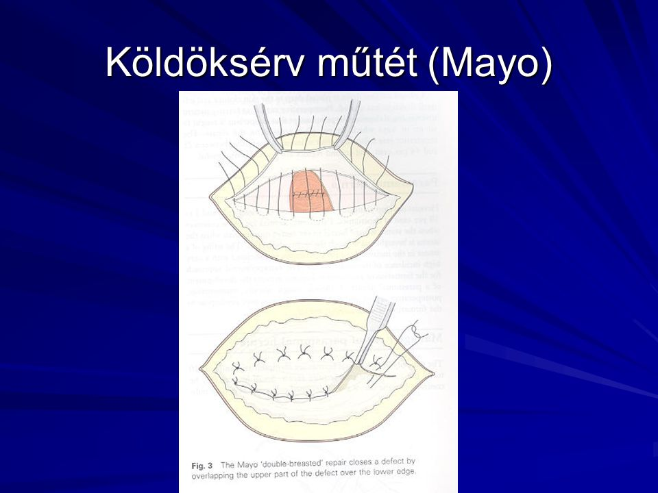 Köldöksérv műtét (Mayo)