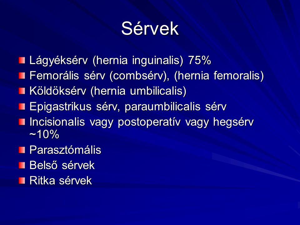 Sérvek Lágyéksérv (hernia inguinalis) 75%