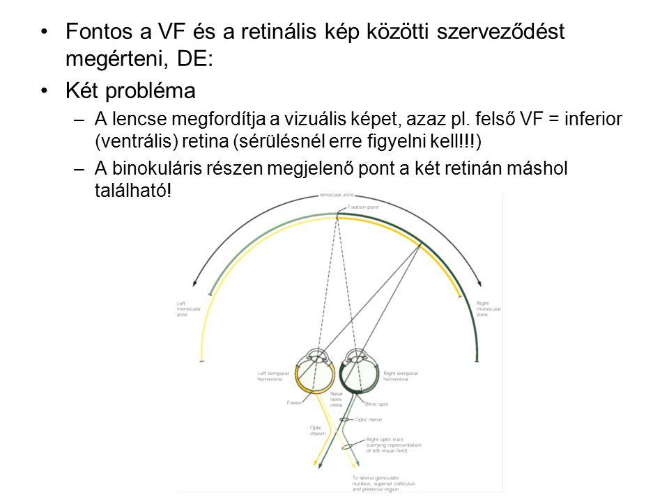 Fontos a VF és a retinális kép közötti szerveződést megérteni, DE: