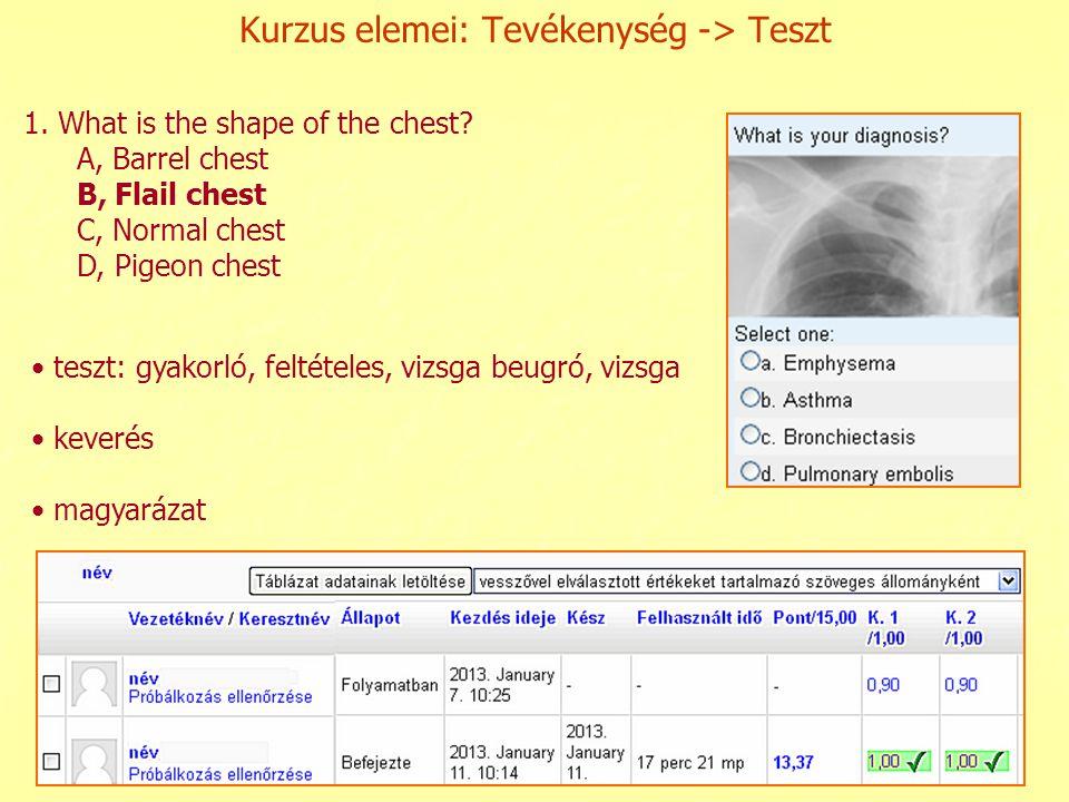 Kurzus elemei: Tevékenység -> Teszt