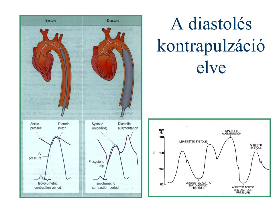 A diastolés kontrapulzáció elve