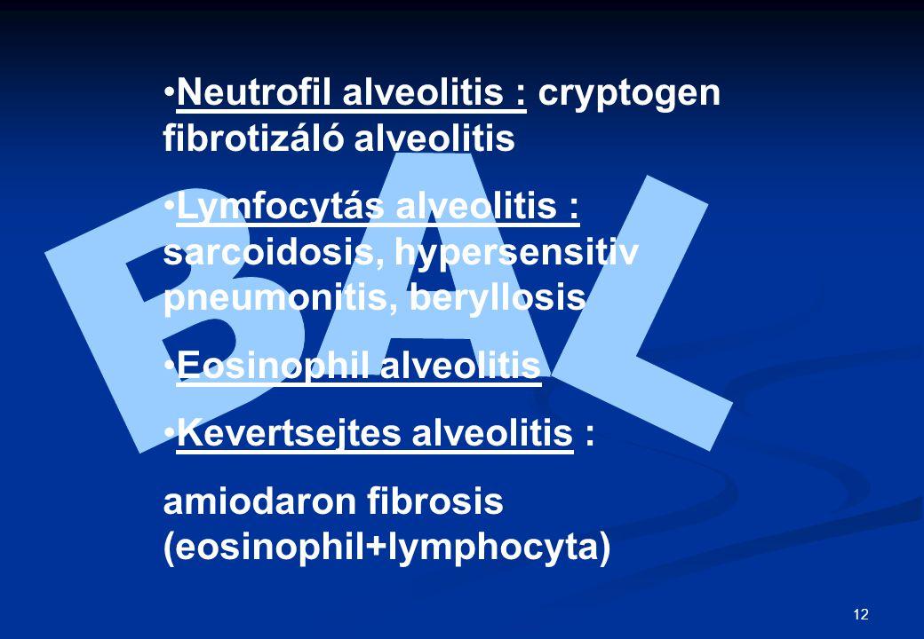 BAL Neutrofil alveolitis : cryptogen fibrotizáló alveolitis
