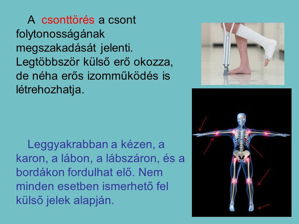 A csonttörés a csont folytonosságának megszakadását jelenti