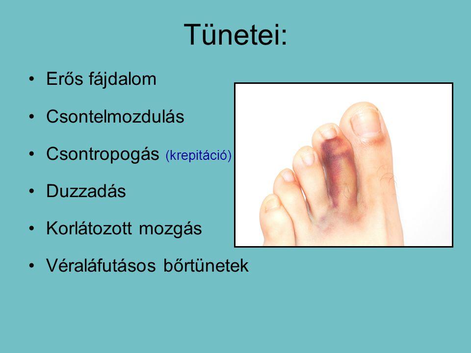Tünetei: Erős fájdalom Csontelmozdulás Csontropogás (krepitáció)
