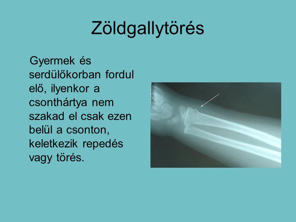 Zöldgallytörés Gyermek és serdülőkorban fordul elő, ilyenkor a csonthártya nem szakad el csak ezen belül a csonton, keletkezik repedés vagy törés.