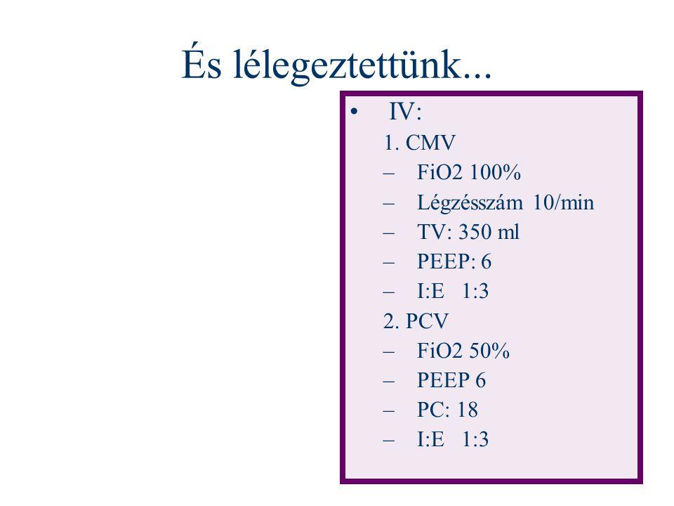 És lélegeztettünk... IV: 1. CMV FiO2 100% Légzésszám 10/min TV: 350 ml