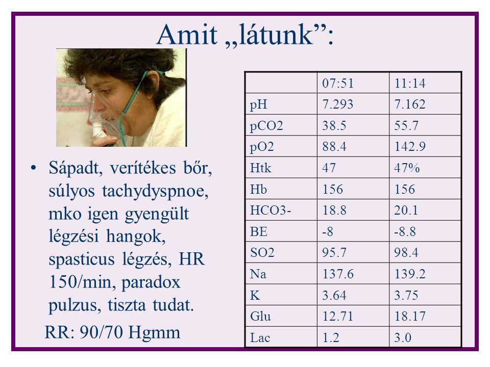 "Amit ""látunk : 07:51. 11:14. pH. 7.293. 7.162. pCO2. 38.5. 55.7. pO2. 88.4. 142.9. Htk. 47."