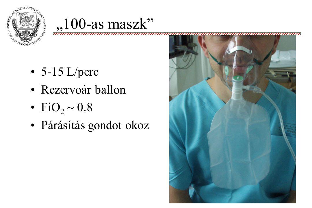 """""""100-as maszk 5-15 L/perc Rezervoár ballon FiO2 ~ 0.8"""