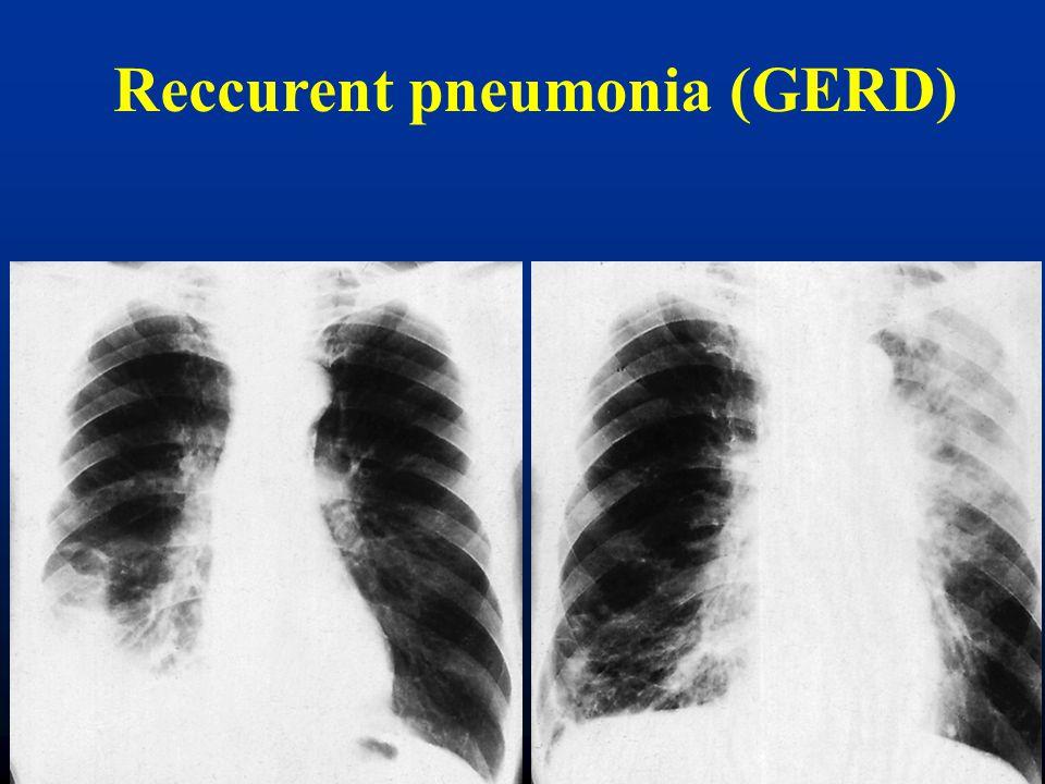 Reccurent pneumonia (GERD)