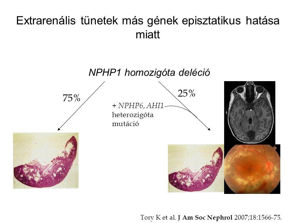 Extrarenális tünetek más gének episztatikus hatása miatt