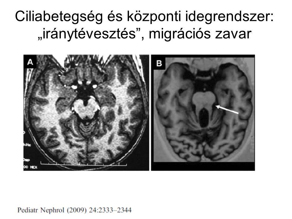 """Ciliabetegség és központi idegrendszer: """"iránytévesztés , migrációs zavar"""