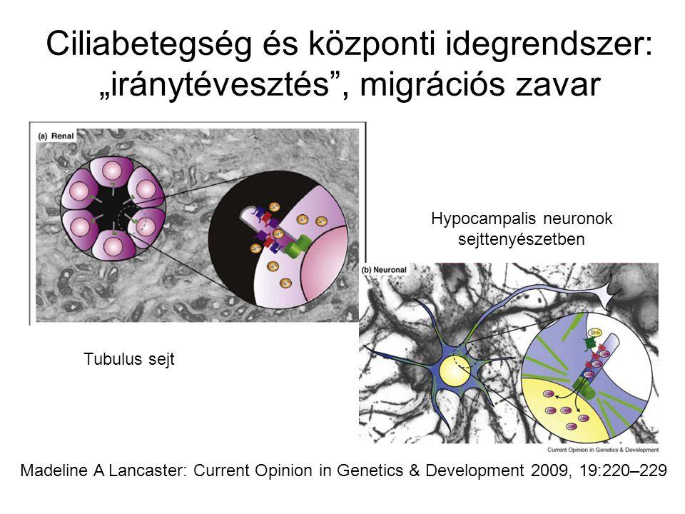 Hypocampalis neuronok