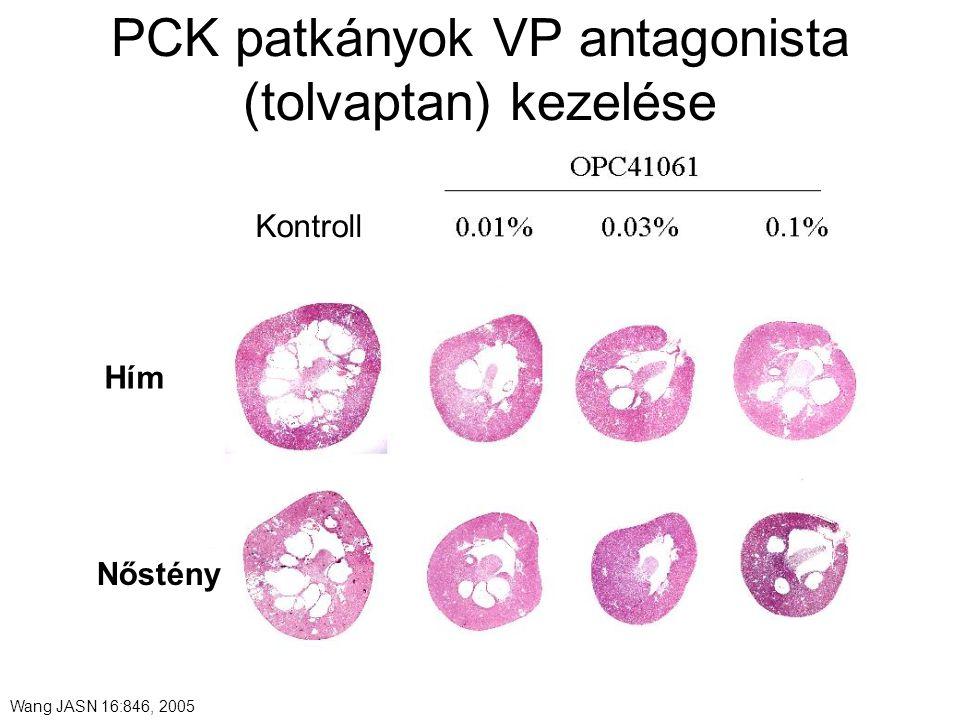 PCK patkányok VP antagonista (tolvaptan) kezelése