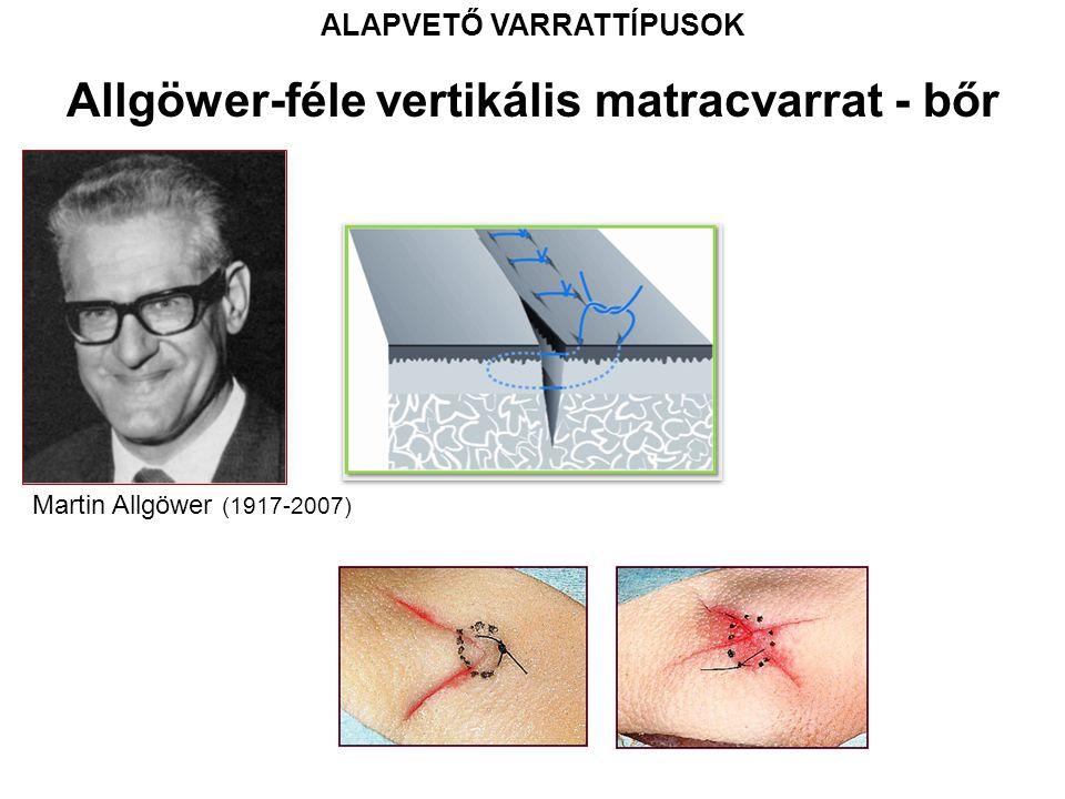 ALAPVETŐ VARRATTÍPUSOK Allgöwer-féle vertikális matracvarrat - bőr