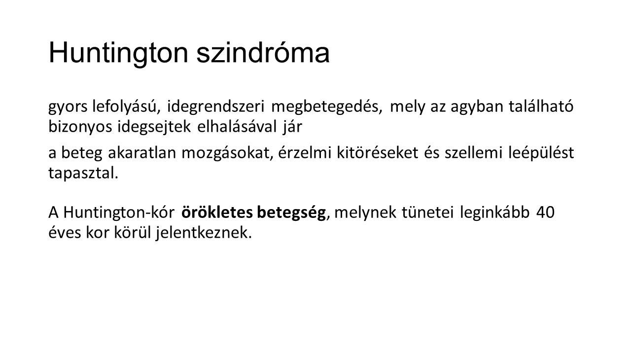 Huntington szindróma