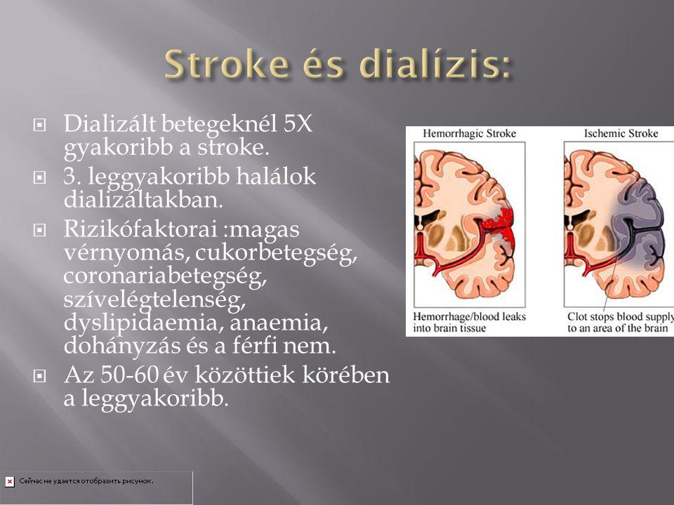 Stroke és dialízis: Dializált betegeknél 5X gyakoribb a stroke.
