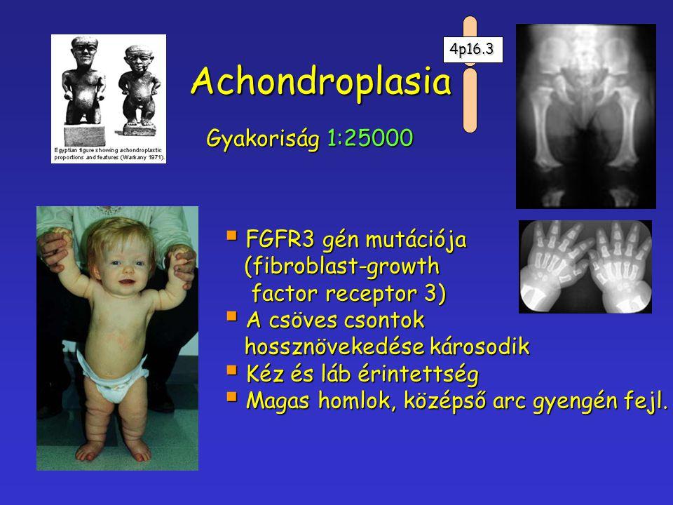 Achondroplasia Gyakoriság 1:25000 FGFR3 gén mutációja