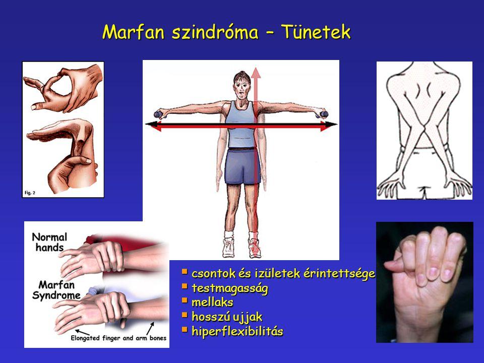 Marfan szindróma – Tünetek