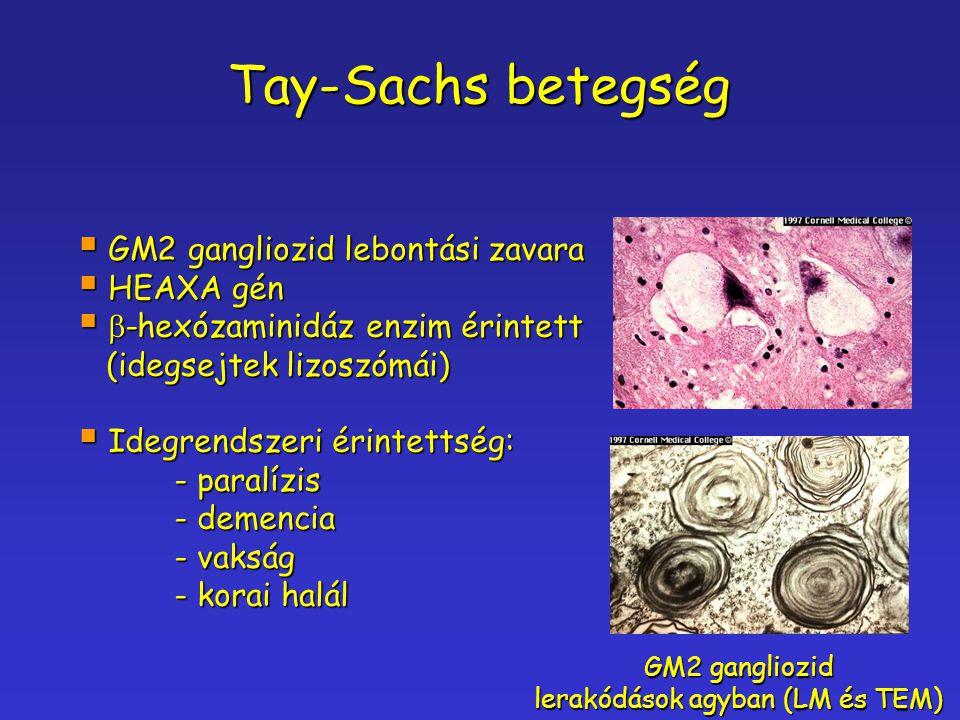 lerakódások agyban (LM és TEM)