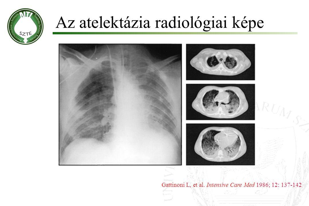 Az atelektázia radiológiai képe