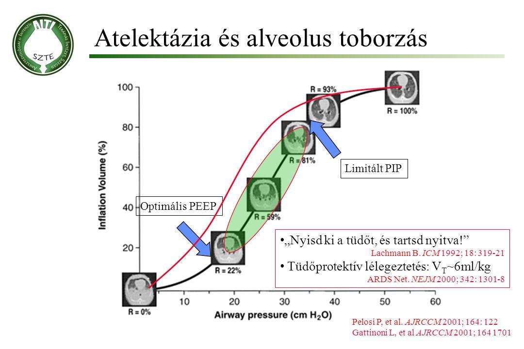 Atelektázia és alveolus toborzás