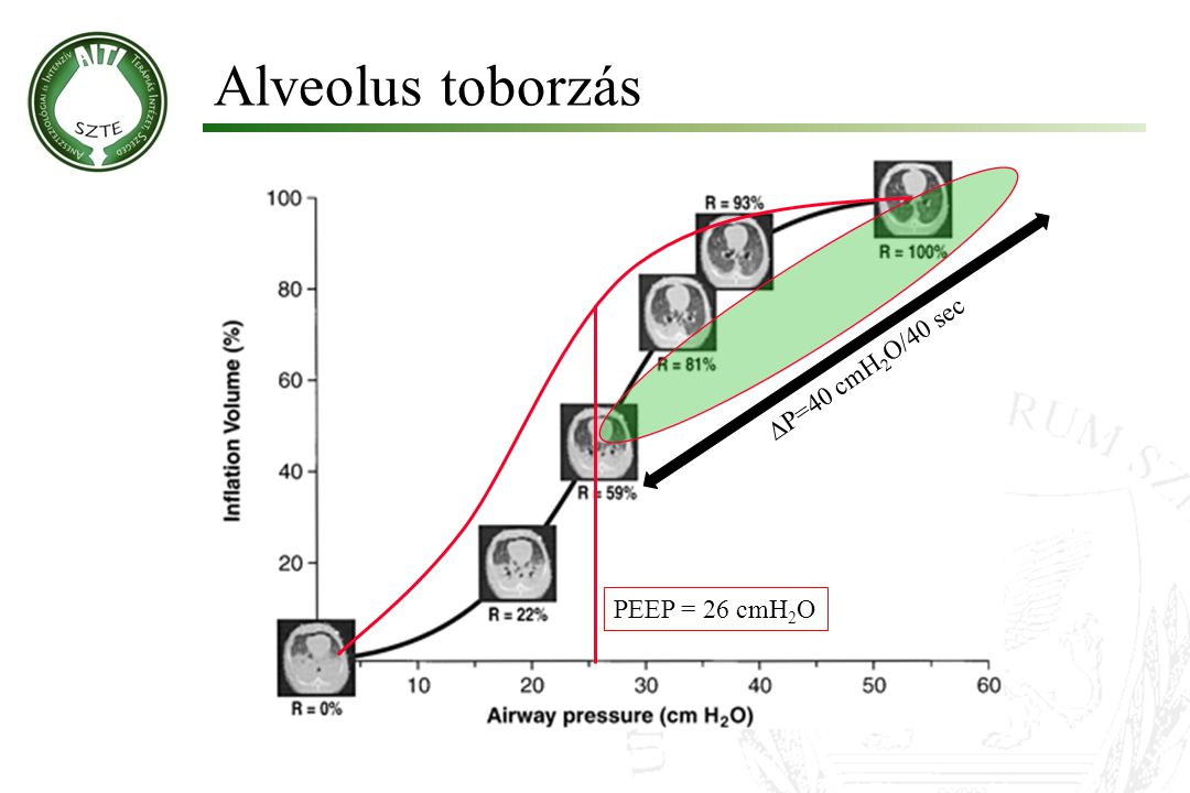 Alveolus toborzás P=40 cmH2O/40 sec PEEP = 26 cmH2O