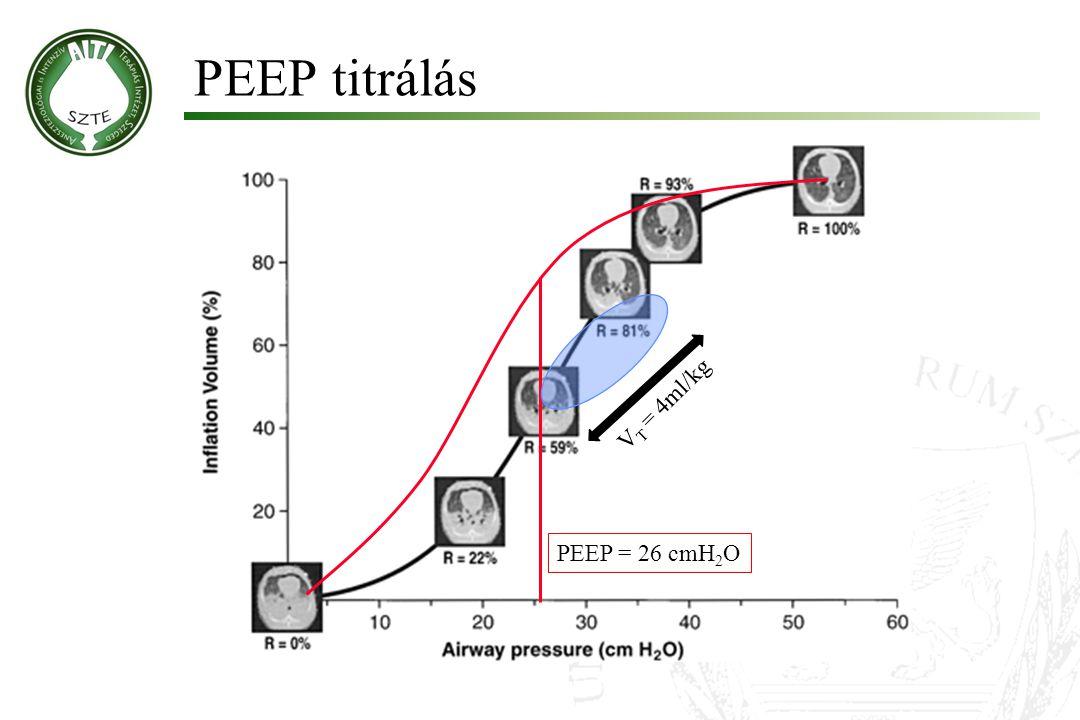 PEEP titrálás VT = 4ml/kg PEEP = 26 cmH2O