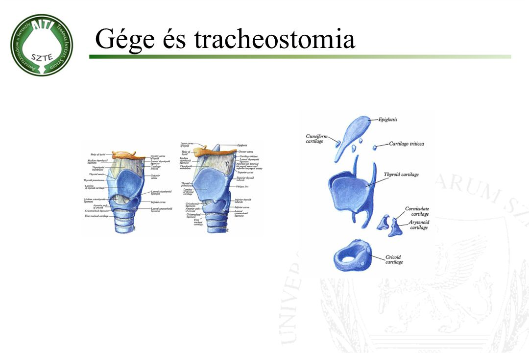 Gége és tracheostomia