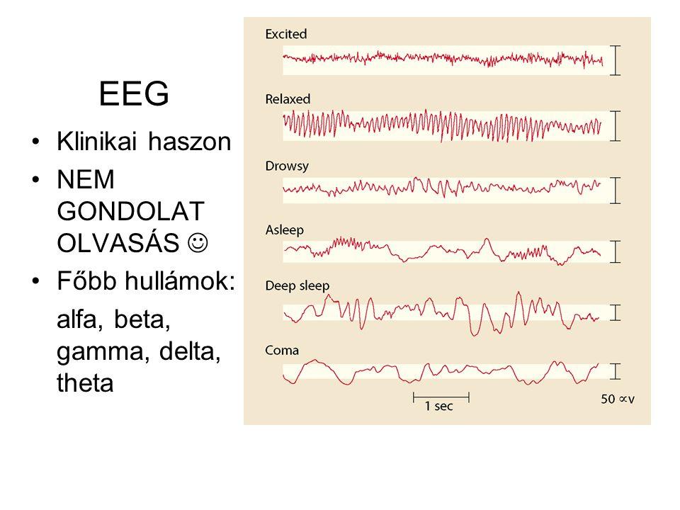 EEG Klinikai haszon NEM GONDOLAT OLVASÁS  Főbb hullámok: