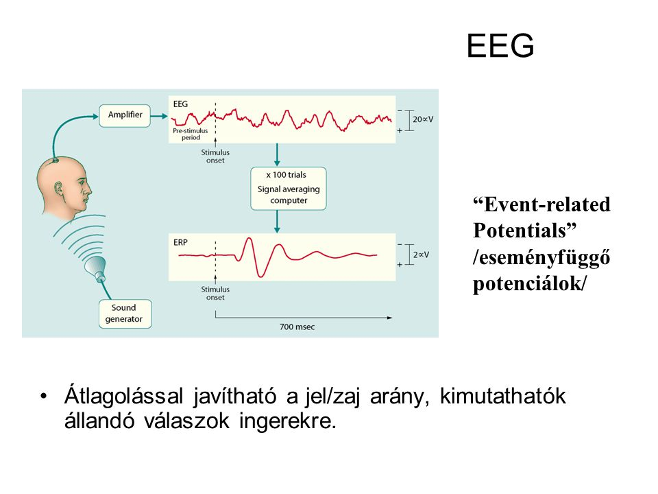 EEG Event-related.