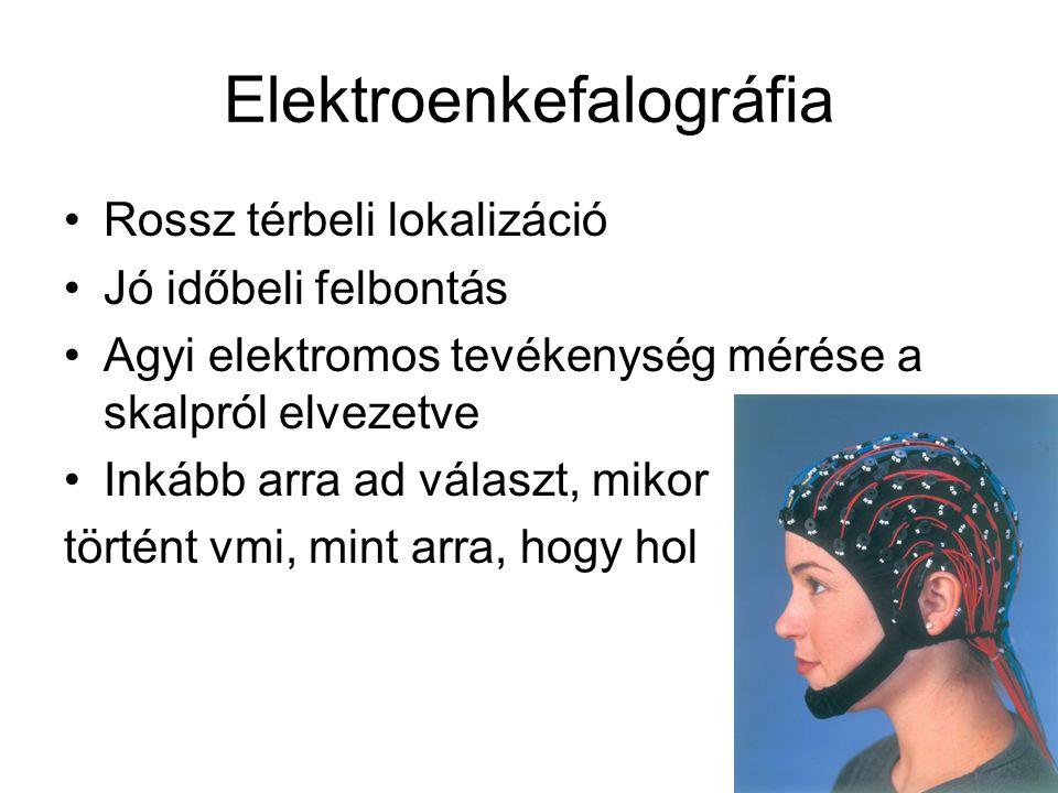Elektroenkefalográfia