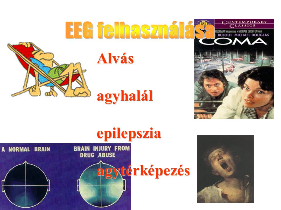 EEG felhasználása Alvás agyhalál epilepszia agytérképezés