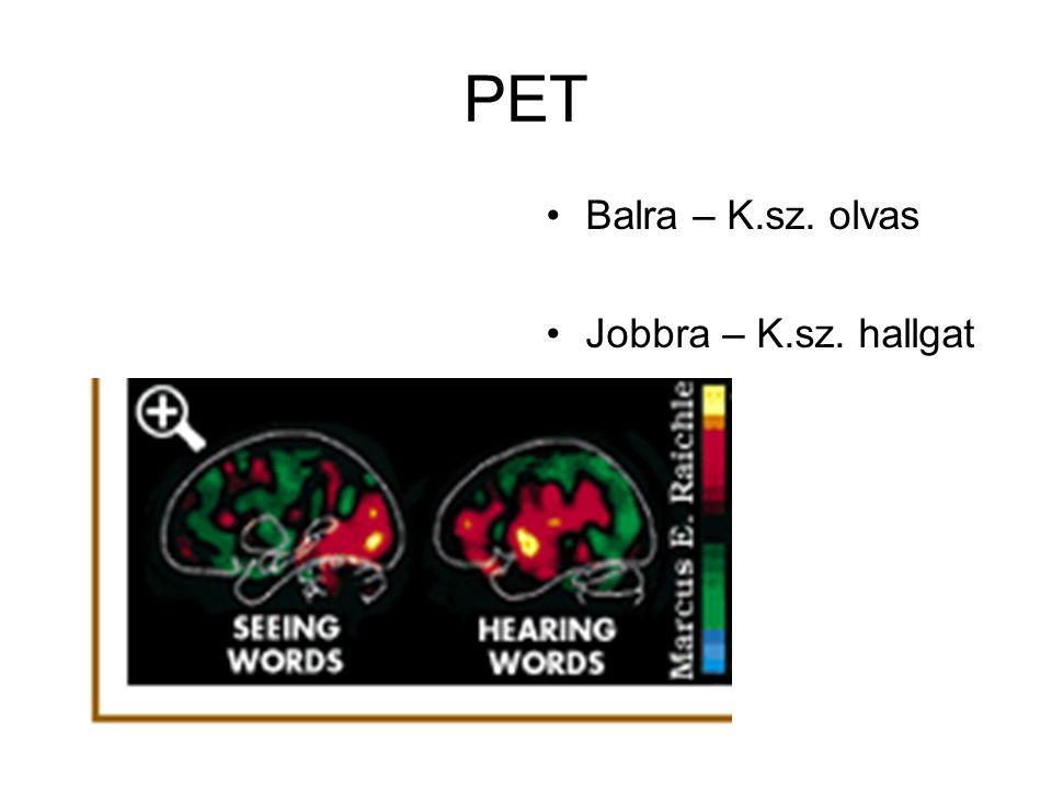 PET Balra – K.sz. olvas Jobbra – K.sz. hallgat