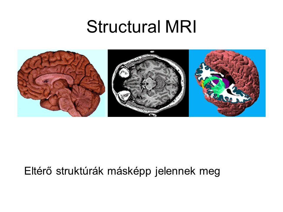 Structural MRI Eltérő struktúrák másképp jelennek meg