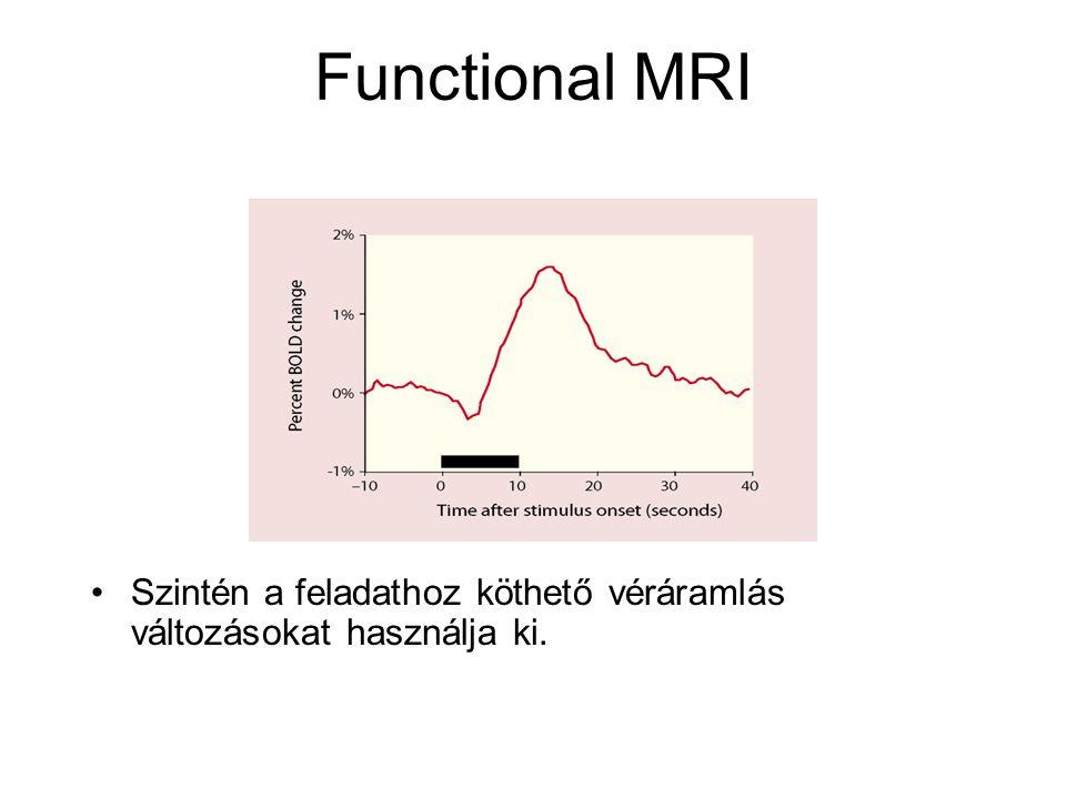 Functional MRI Szintén a feladathoz köthető véráramlás változásokat használja ki.