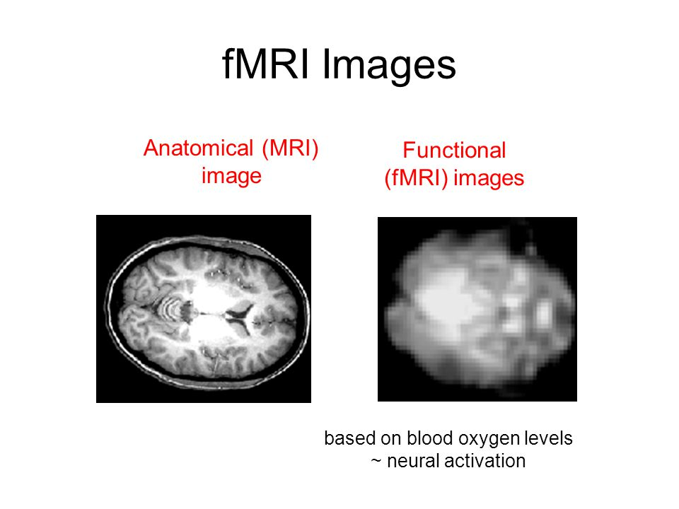 fMRI Images Anatomical (MRI) image Functional (fMRI) images