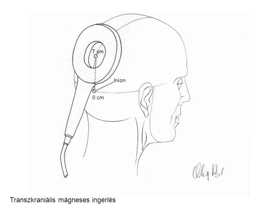Transzkraniális mágneses ingerlés