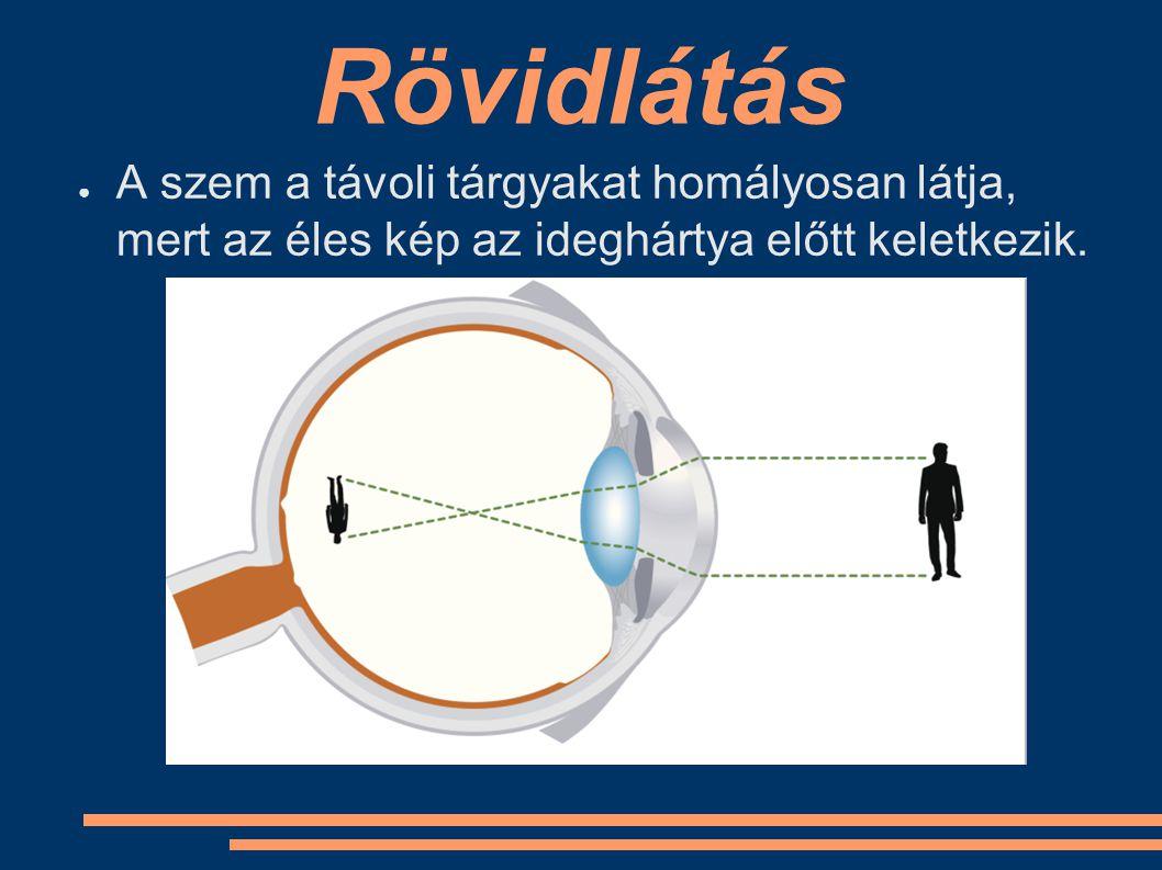 Rövidlátás A szem a távoli tárgyakat homályosan látja, mert az éles kép az ideghártya előtt keletkezik.