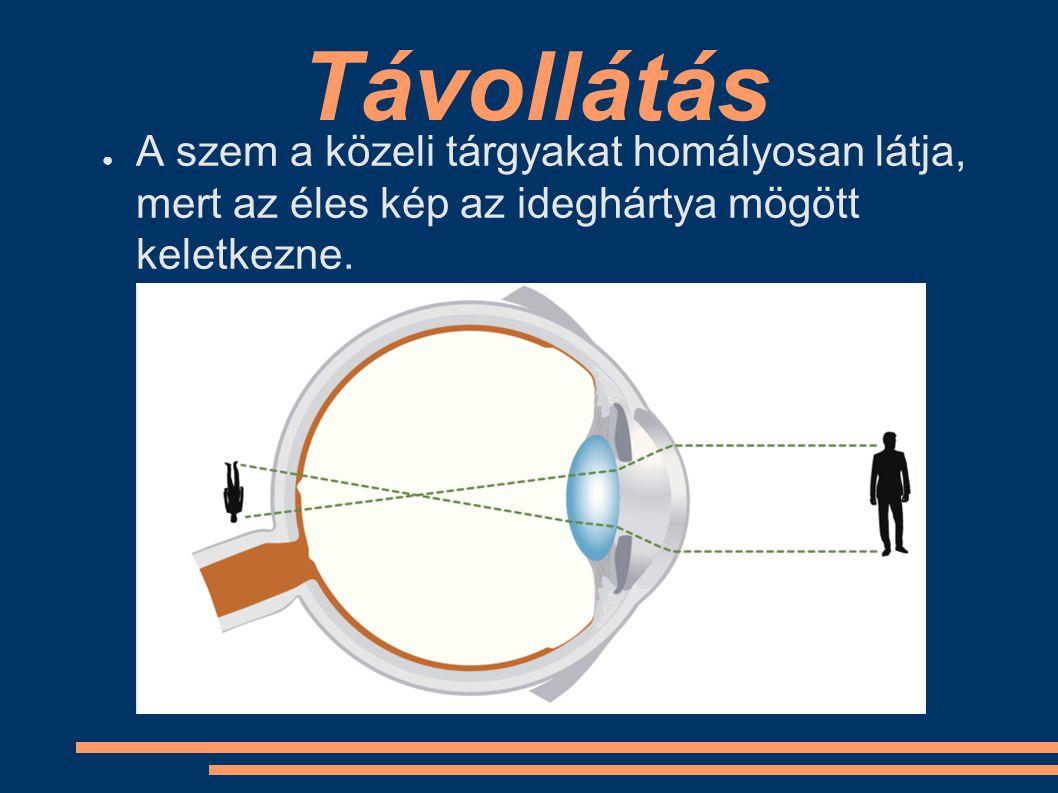 Távollátás A szem a közeli tárgyakat homályosan látja, mert az éles kép az ideghártya mögött keletkezne.