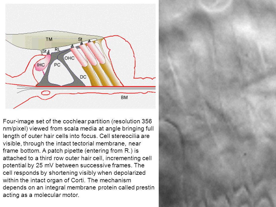 Four-image set of the cochlear partition (resolution 356 nm/pixel) viewed from scala media at angle bringing full length of outer hair cells into focus.