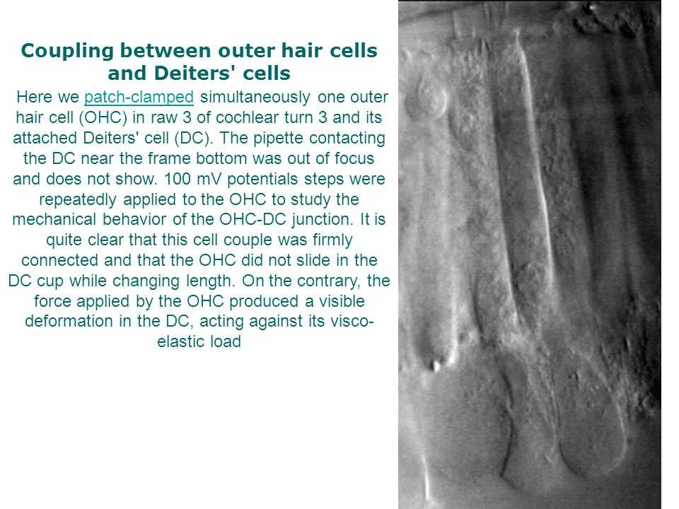Coupling between outer hair cells and Deiters cells Here we patch-clamped simultaneously one outer hair cell (OHC) in raw 3 of cochlear turn 3 and its attached Deiters cell (DC).