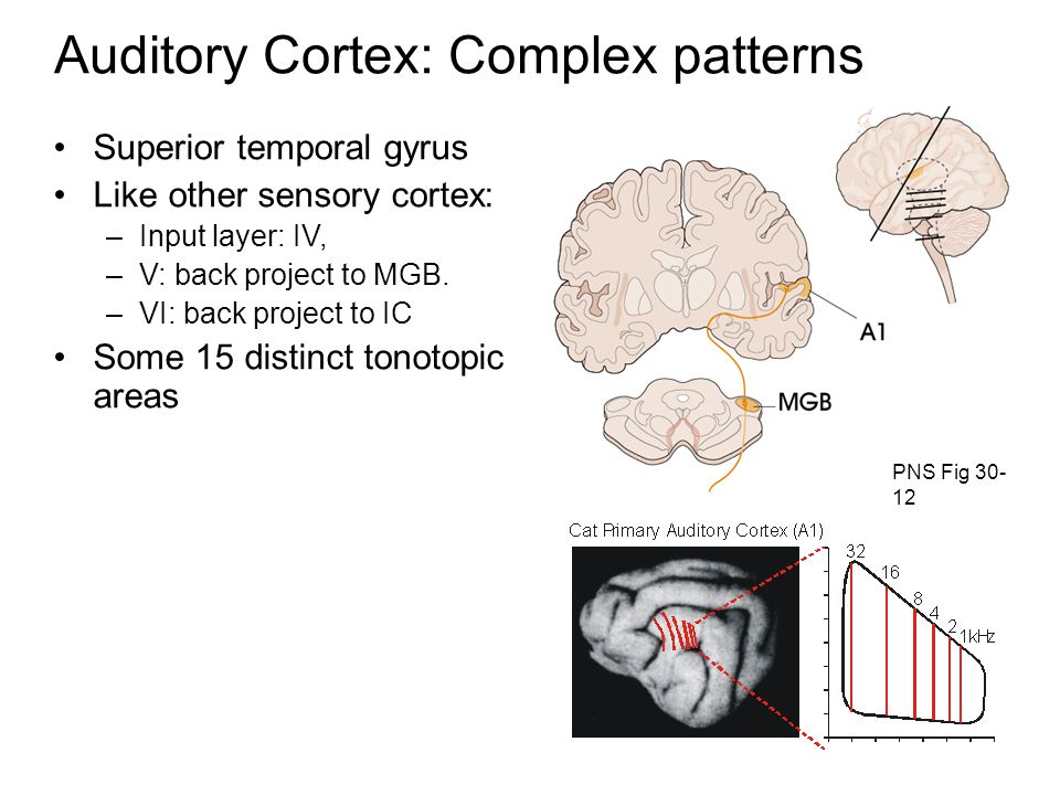 Auditory Cortex: Complex patterns