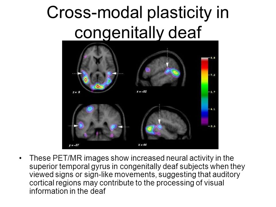 Cross-modal plasticity in congenitally deaf