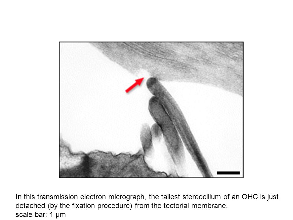 In this transmission electron micrograph, the tallest stereocilium of an OHC is just detached (by the fixation procedure) from the tectorial membrane.